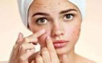 चेहरे के दाग-धब्बे मिटाने को करें ये आसान, उपाय 24 घन्टे में दिखेगा असर